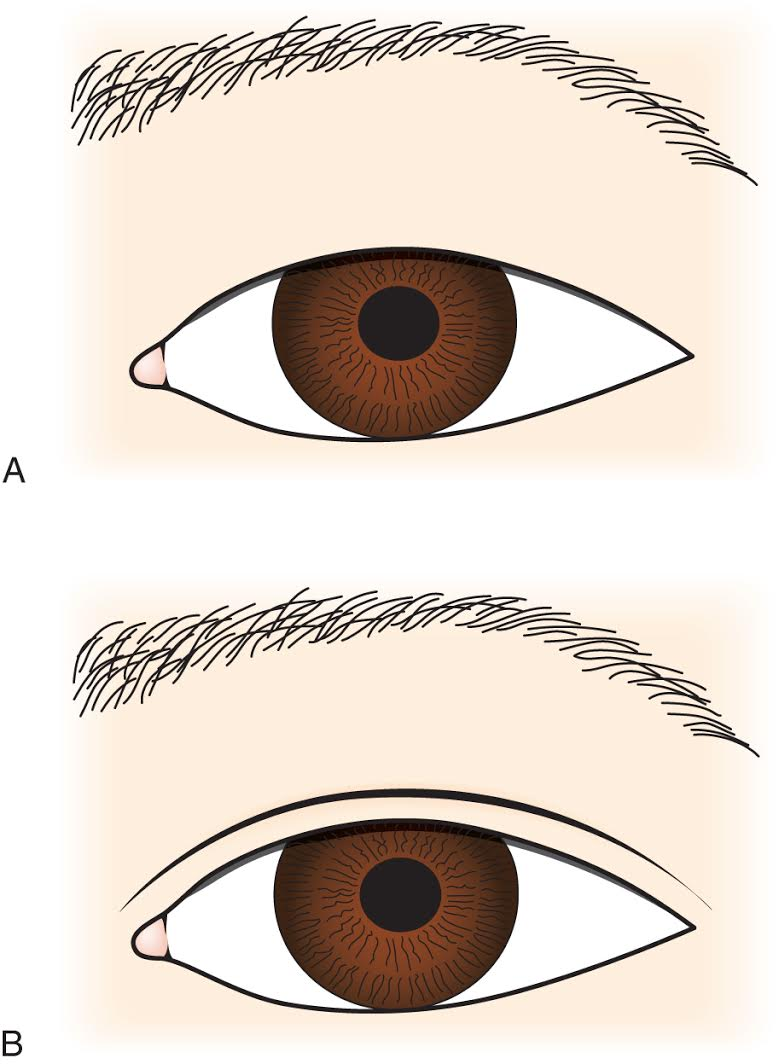 Asian Eyelid Surgery Center - cosmetic and asian double eyelid surgery