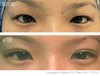 asian eyelid surgery gallery image